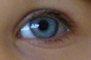 Aktiv gegen Kurzsichtigkeit-Myopiekontrolle